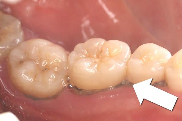 歯石 とり